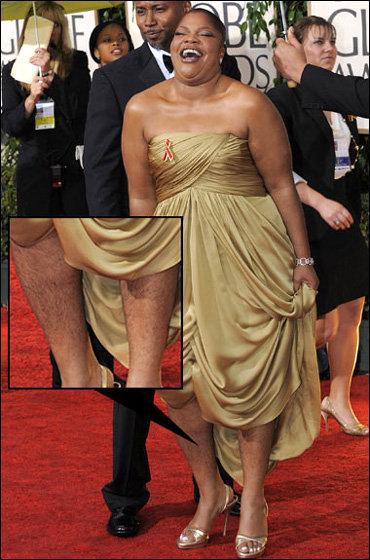 Обладательница Оскара Моник на недавнем вручении премии Золотой глобус потрясла зрителей своими мохнатыми ногами