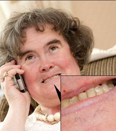 Поющая домохозяйка Сьюзан Бойл даже не пытается удалять усики и волоски на своем подбородке