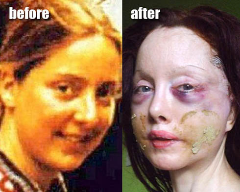 Слева: Нилен в возрасте 22-х лет, до того, как она решила стать реинкарнацией Нефертити. Справа - британка после очередной пластической операции.