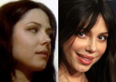 Очевидно, что Оксана изменила форму носа и губ, а так же подтянула веки, из-за чего разрез глаз стал совсем другим.
