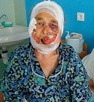 Такмила Шамильевна стала жертвой верного пса, взбесившегося от зноя и тоски