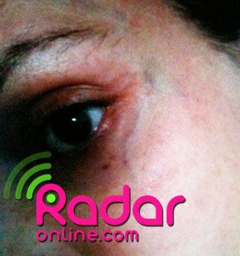 В Итнернете появились снимки синяков, которые Лел поставил Оксане. Фото: Radaronline.com